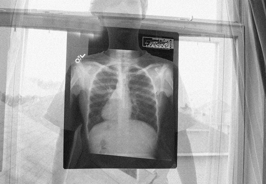 X-ray hanging in window